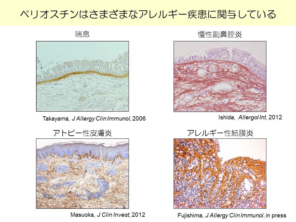間質性肺炎で発症した強皮症の1例   jrs.or.jp